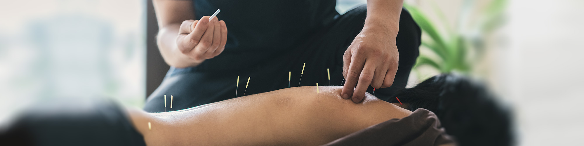 acupuncture treatment in Manchester city centre