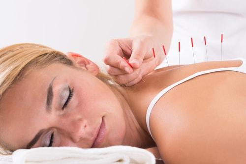acupunture treatment