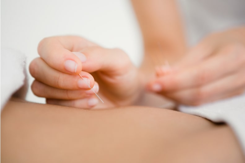 Acupuncture treatment in Manchester by Total Restore