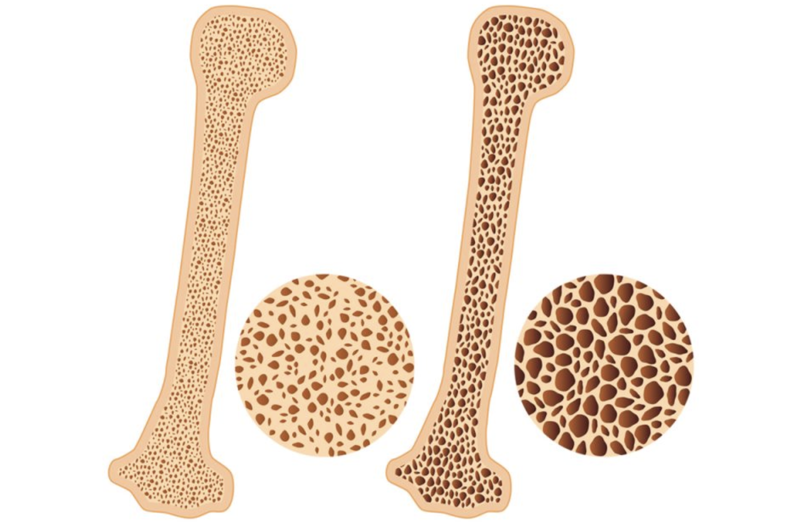 Osteoporosis treatment in Manchester - by highly trained physios