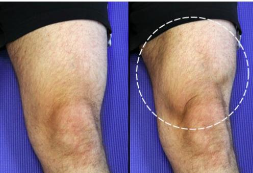 Knee arthritis exercises - quadricep setting .